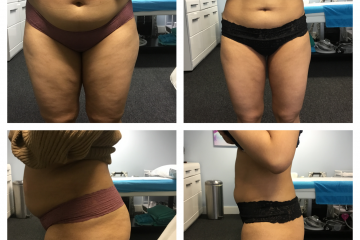 Clinic 33: Cryotherapy – A way to permanently reduce body fat? tell me more… on Eastbourne Bournefree website