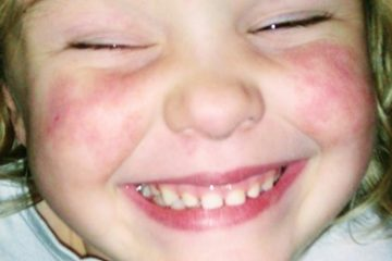 Ellen is just 4 and a patient at Great Ormond Street Hospital. Her family needs our help... on Eastbourne Bournefree website